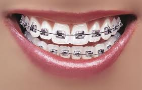 The Struggles With Braces